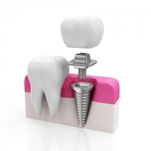 Animation of Dental Implant Parts