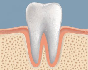 Animation of Tooth in Gum line