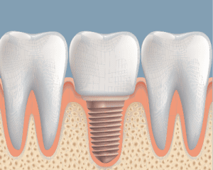Dental Implant Placement Graphic